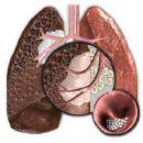 Simpósio sobre Câncer de Pulmão