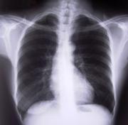 Pneumologia no Hospital Português
