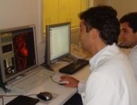 Angiografia Cerebral em 3D